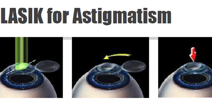 LASIK for Astigmatism