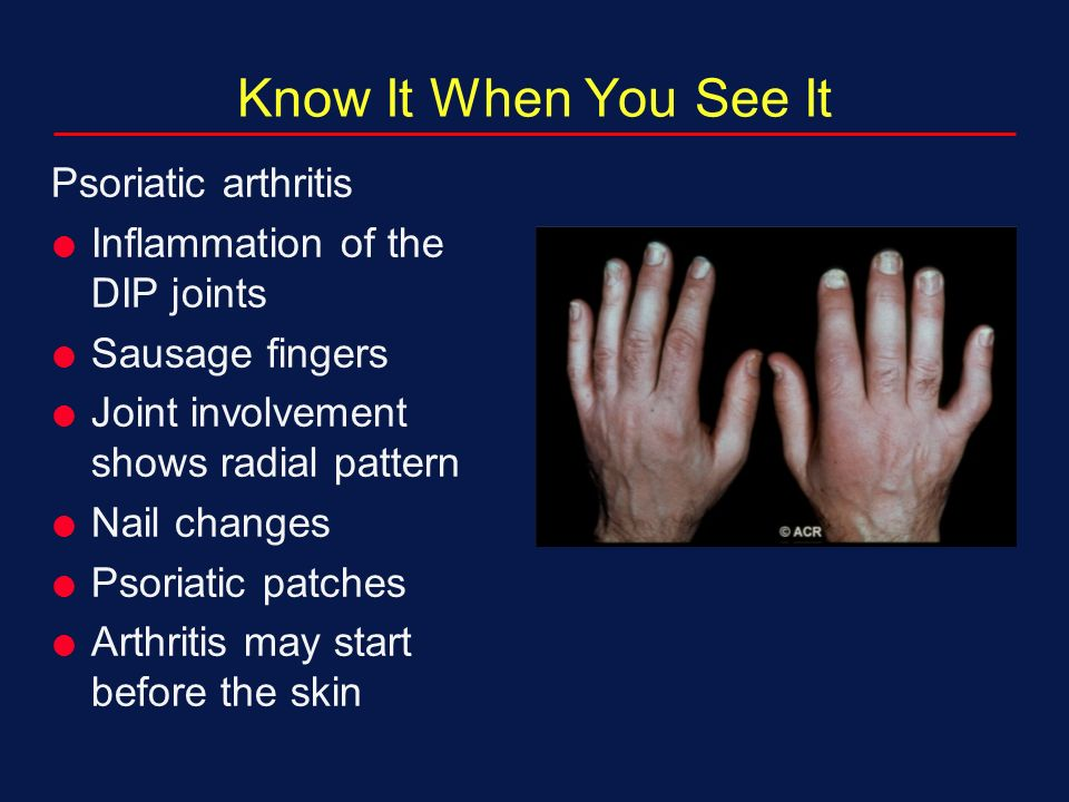 Psoriatic Arthritis treatment