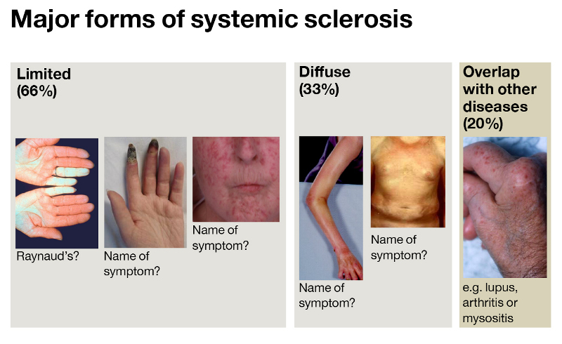 Scleroderma symptoms