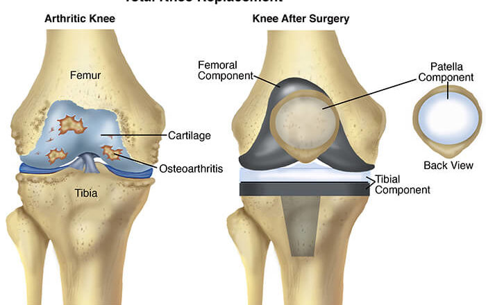 Knee Surgery Recovery Time