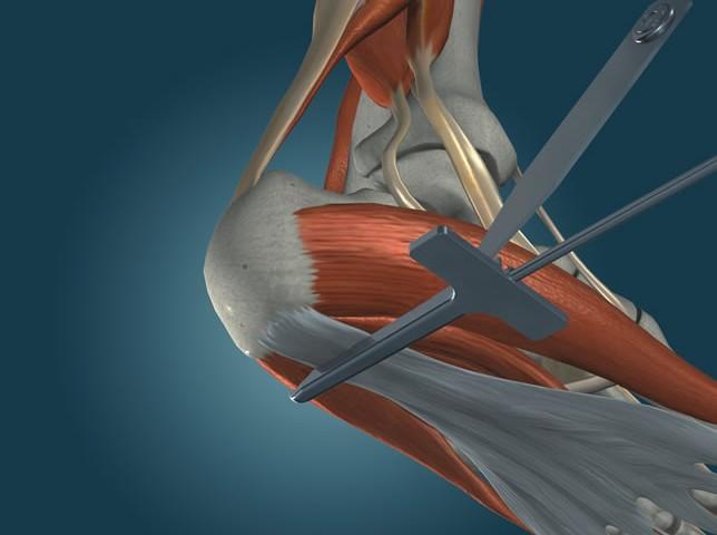 endoscopic plantar fasciitis surgery