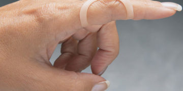 trigger finger splint